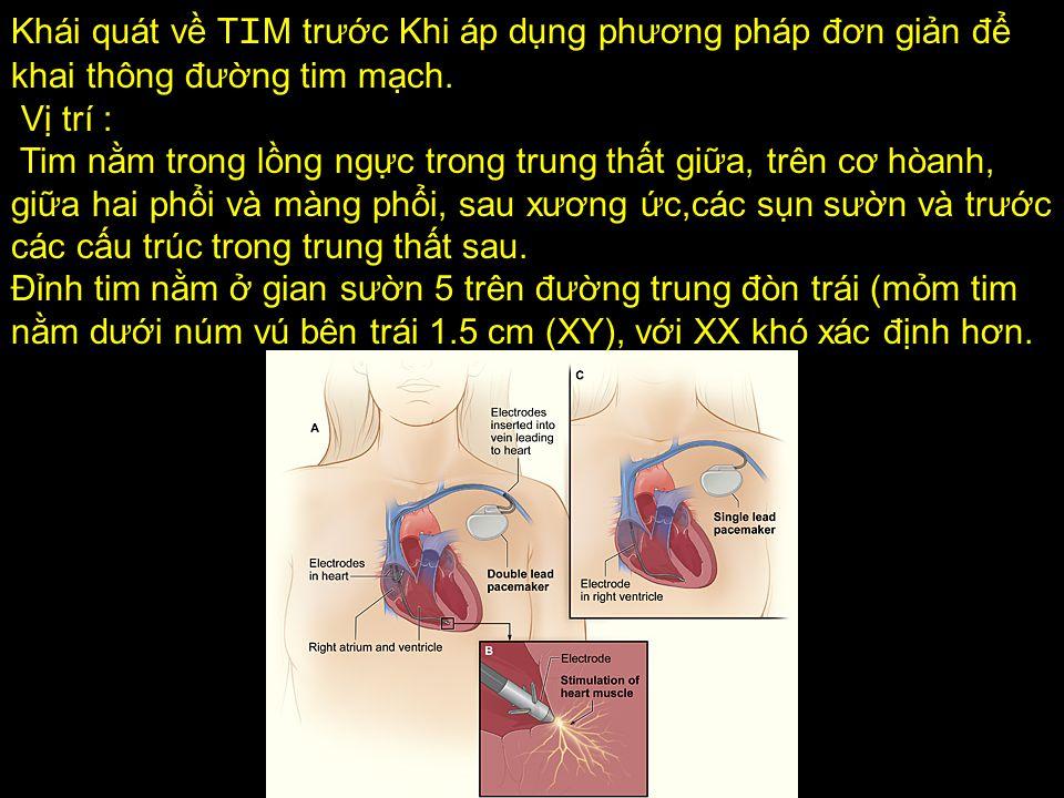 Khái quát về TIM trước Khi áp dụng phương pháp đơn giản để khai thông đường tim mạch.