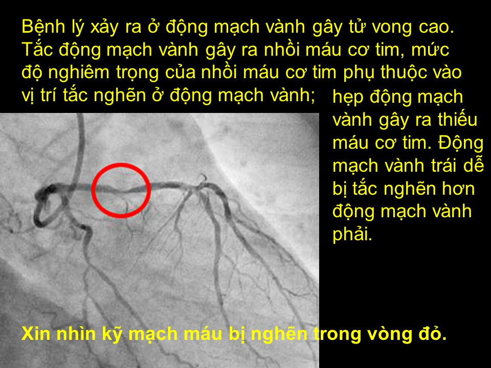 Xin nhìn kỹ mạch máu bị nghẽn trong vòng đỏ.