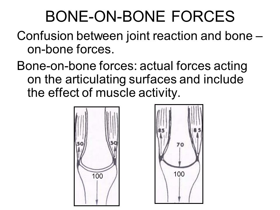 BONE-ON-BONE FORCES Confusion between joint reaction and bone –on-bone forces.