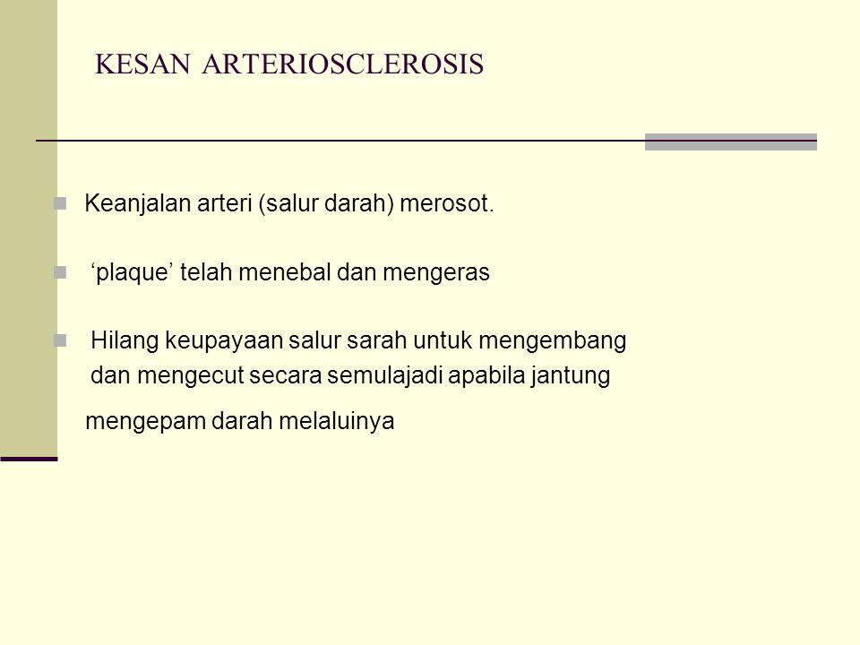 KESAN ARTERIOSCLEROSIS