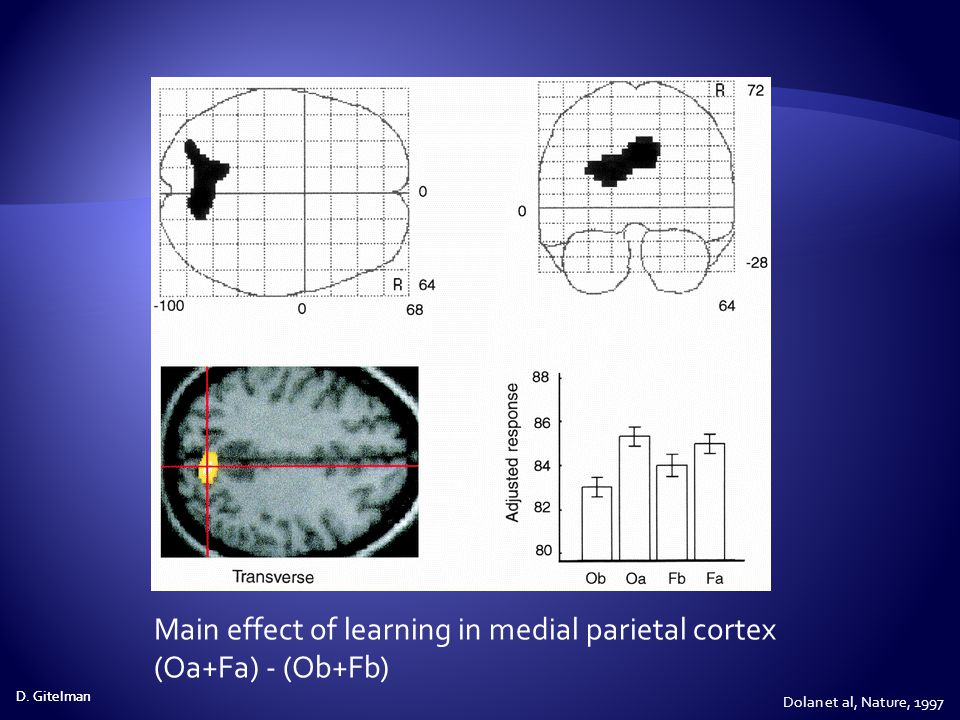 Main effect of learning in medial parietal cortex (Oa+Fa) - (Ob+Fb)