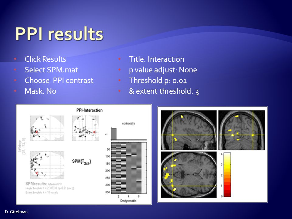 PPI results Click Results Select SPM.mat Choose PPI contrast Mask: No