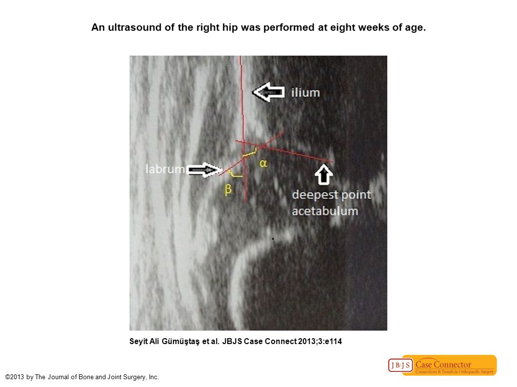 An ultrasound of the right hip was performed at eight weeks of age.