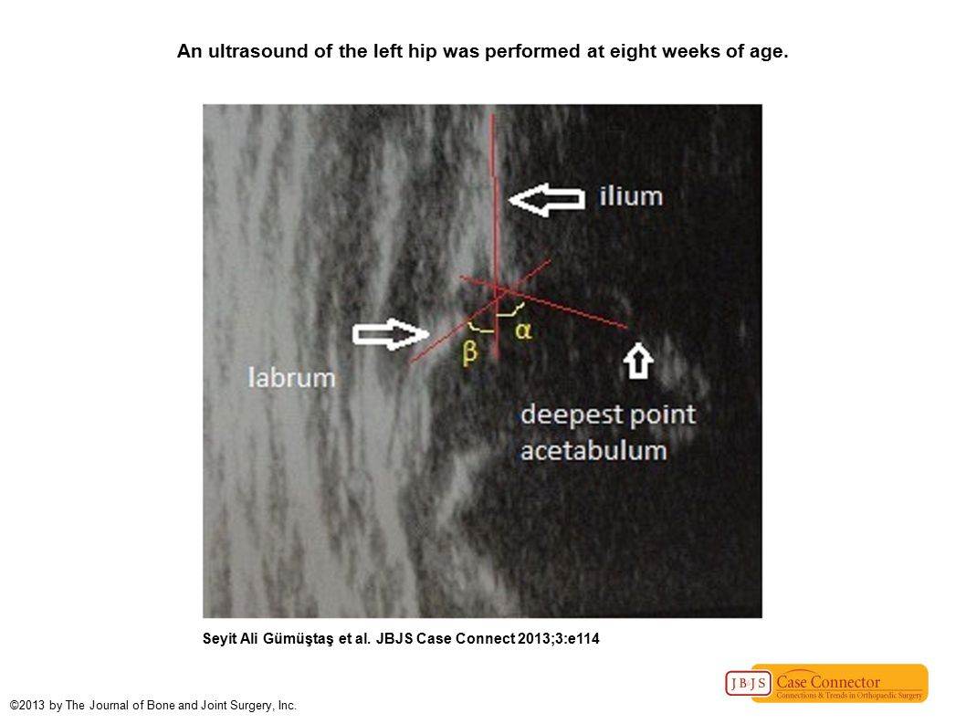 An ultrasound of the left hip was performed at eight weeks of age.