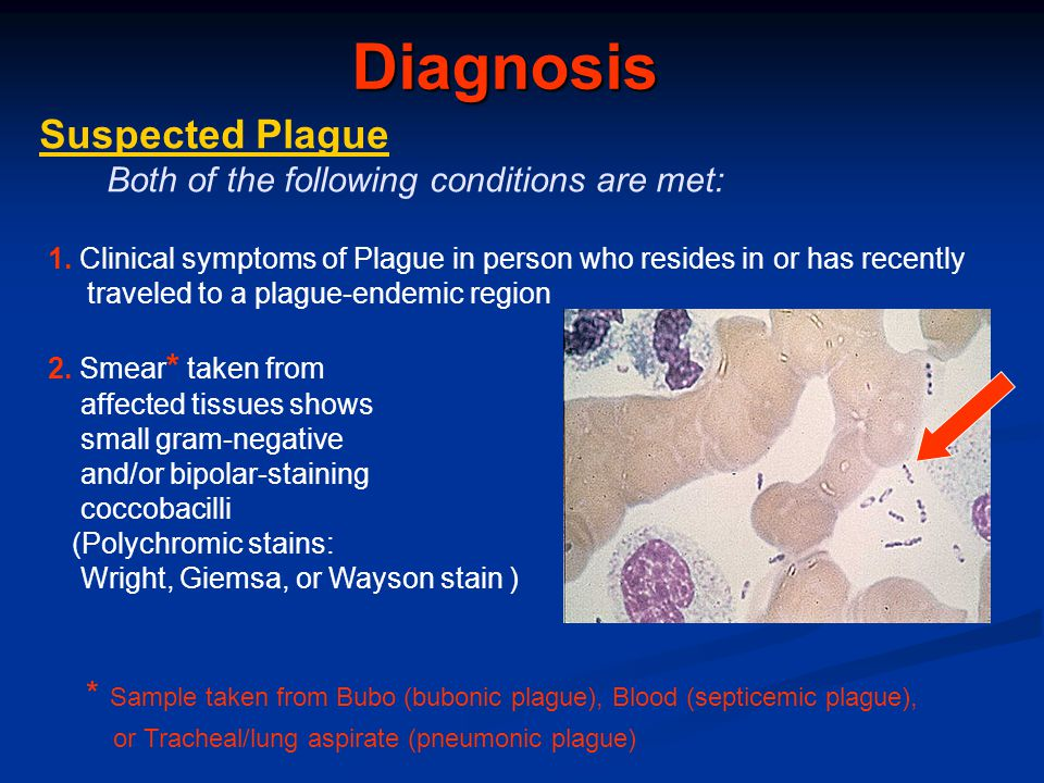 Diagnosis Suspected Plague Both of the following conditions are met: