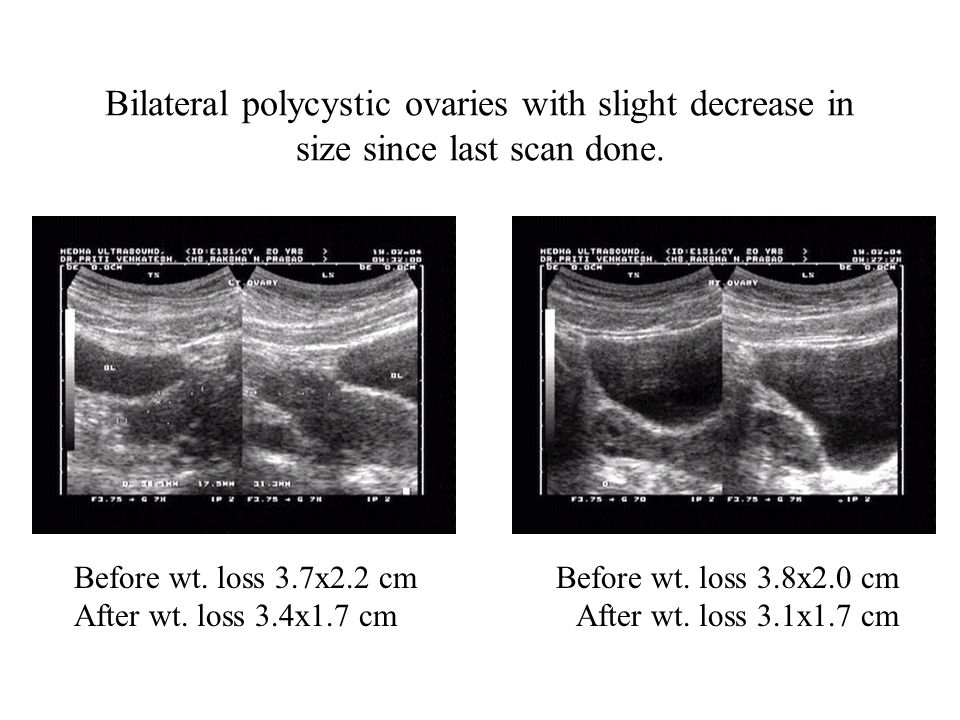Bilateral polycystic ovaries with slight decrease in size since last scan done.