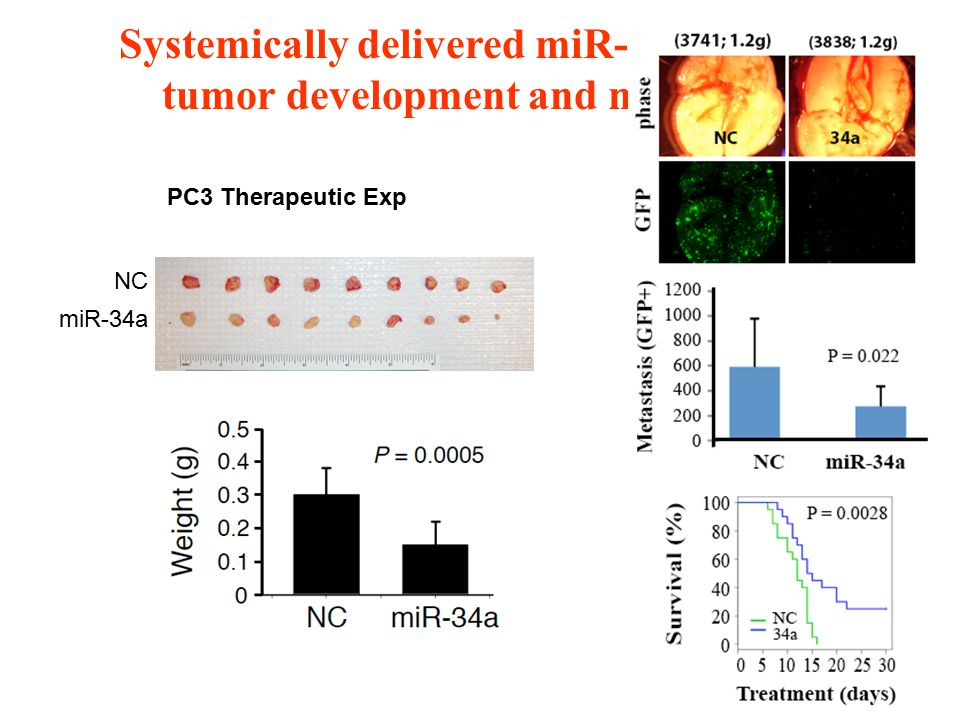 Systemically delivered miR-34a inhibits tumor development and metastasis