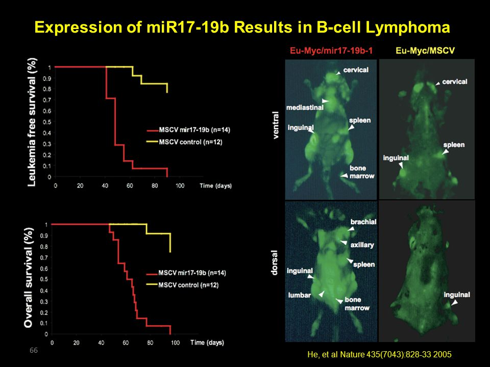 Expression of miR17-19b Results in B-cell Lymphoma