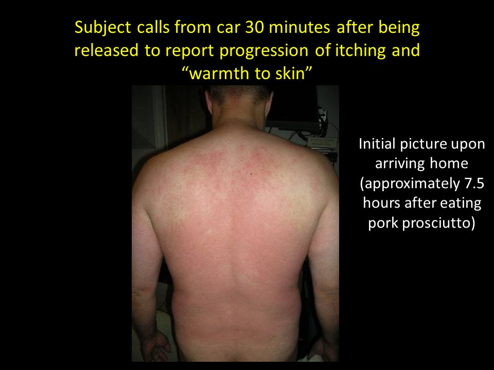 Subject calls from car 30 minutes after being released to report progression of itching and warmth to skin