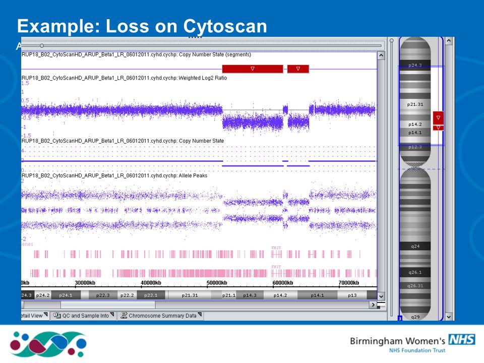 Example: Loss on Cytoscan