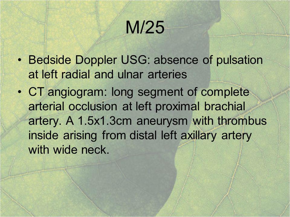 M/25 Bedside Doppler USG: absence of pulsation at left radial and ulnar arteries.