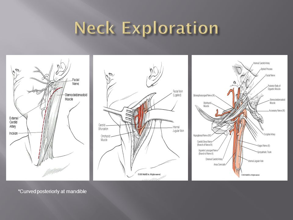 Neck Exploration *Curved posteriorly at mandible