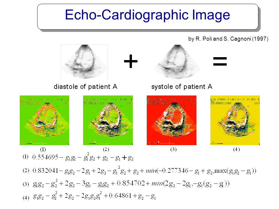 Echo-Cardiographic Image