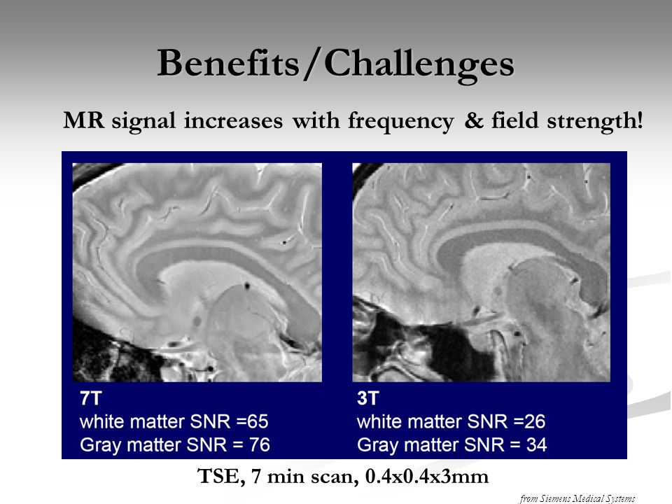 Benefits/Challenges MR signal increases with frequency & field strength! TSE, 7 min scan, 0.4x0.4x3mm.