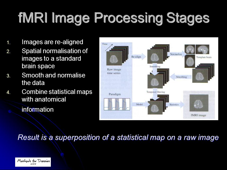fMRI Image Processing Stages