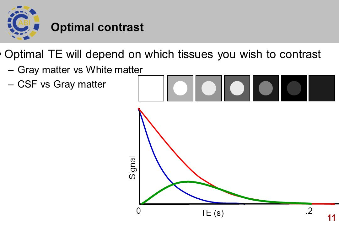 Optimal TE will depend on which tissues you wish to contrast