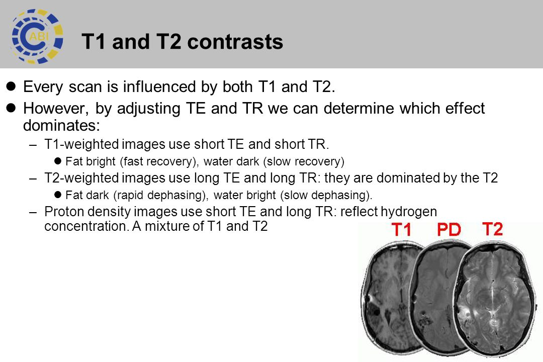 T1 and T2 contrasts Every scan is influenced by both T1 and T2.