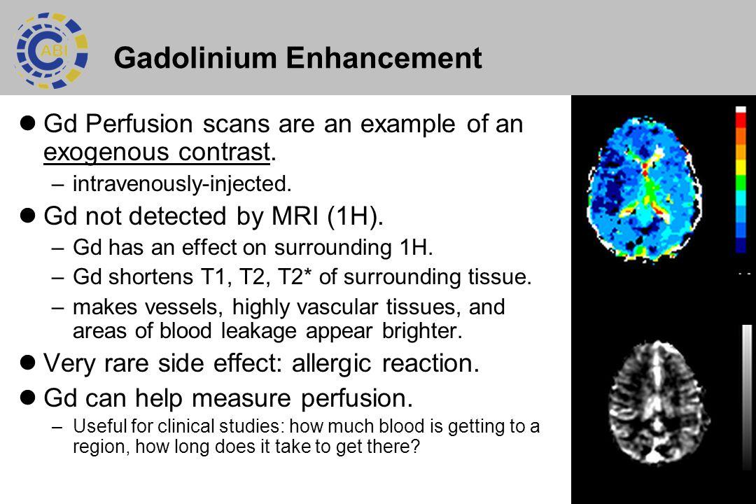 Gadolinium Enhancement