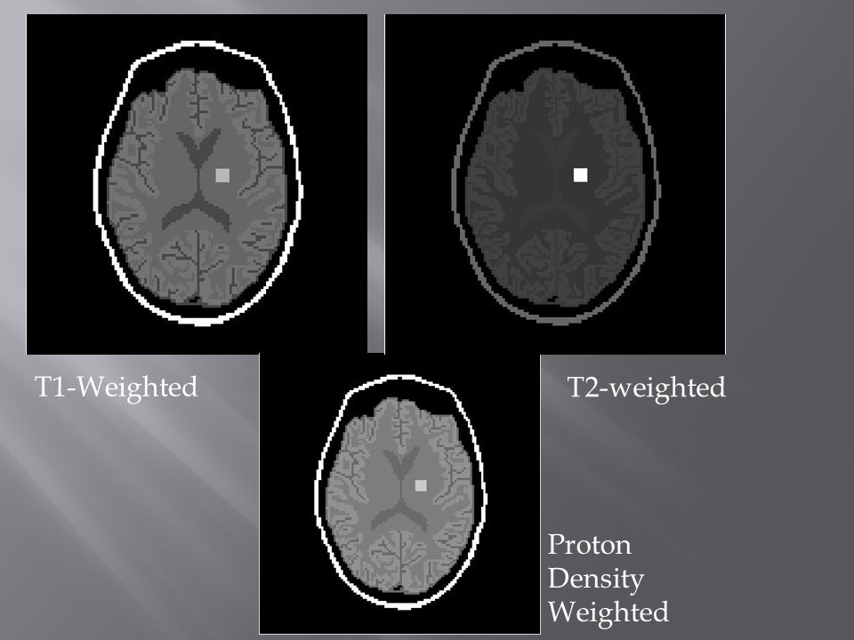 T1-Weighted T2-weighted Proton Density Weighted