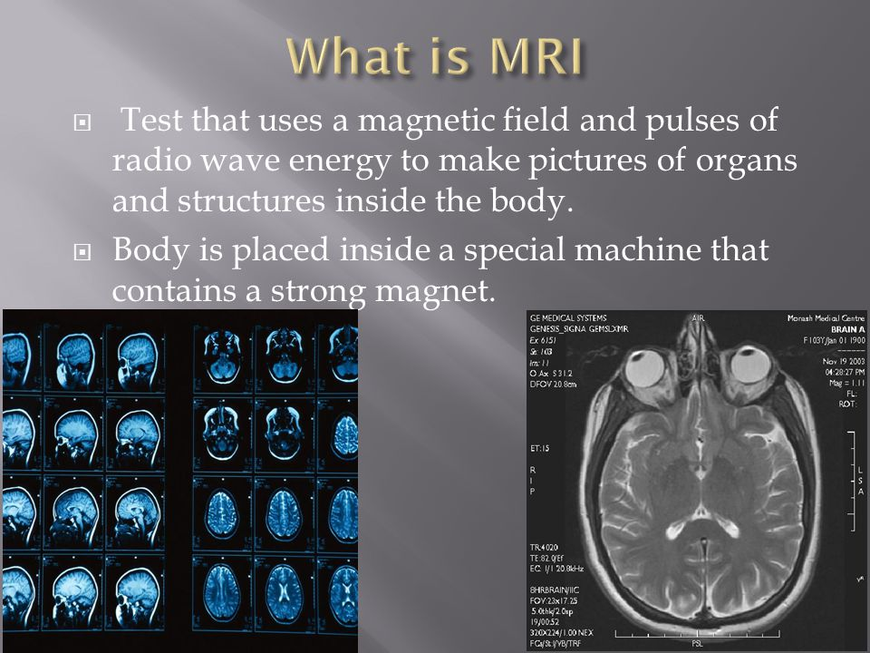 What is MRI Test that uses a magnetic field and pulses of radio wave energy to make pictures of organs and structures inside the body.
