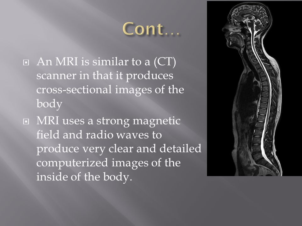 Cont… An MRI is similar to a (CT) scanner in that it produces cross-sectional images of the body.