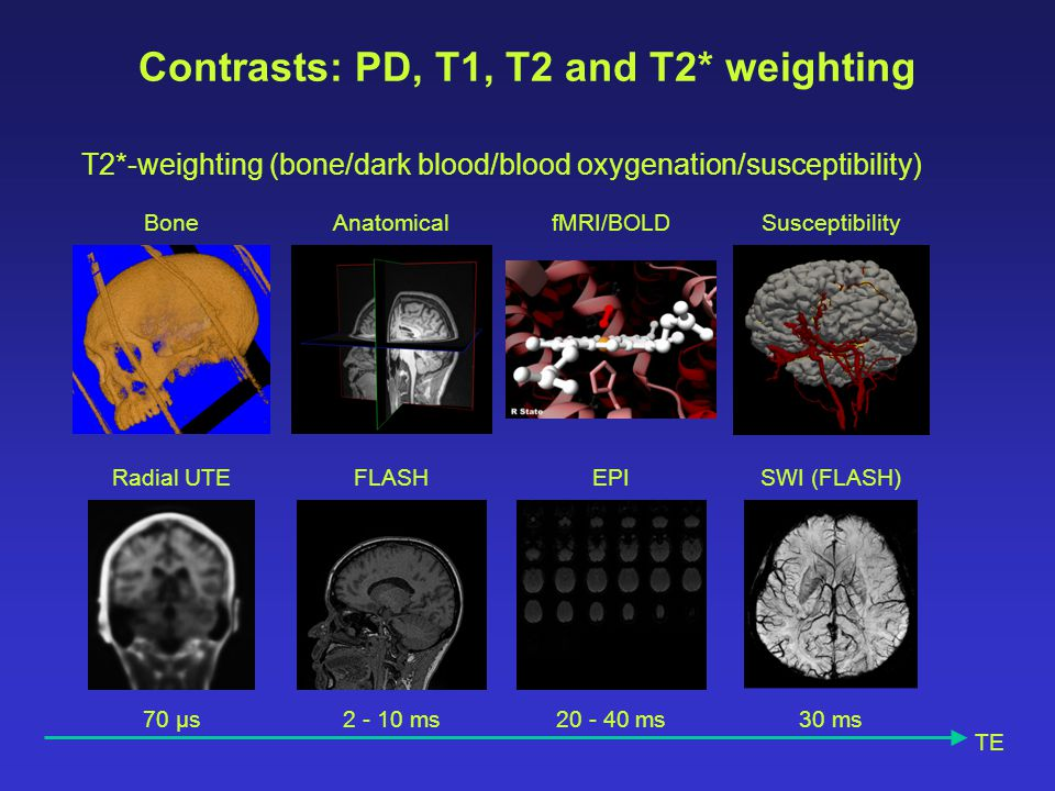 Contrasts: PD, T1, T2 and T2* weighting