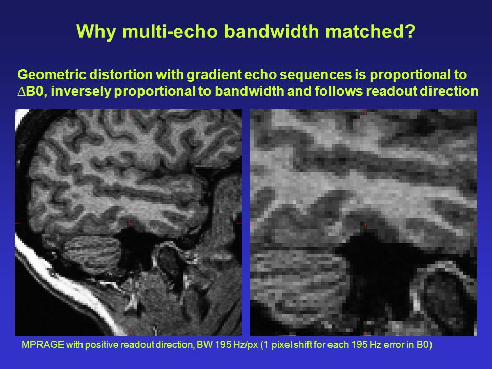 Why multi-echo bandwidth matched