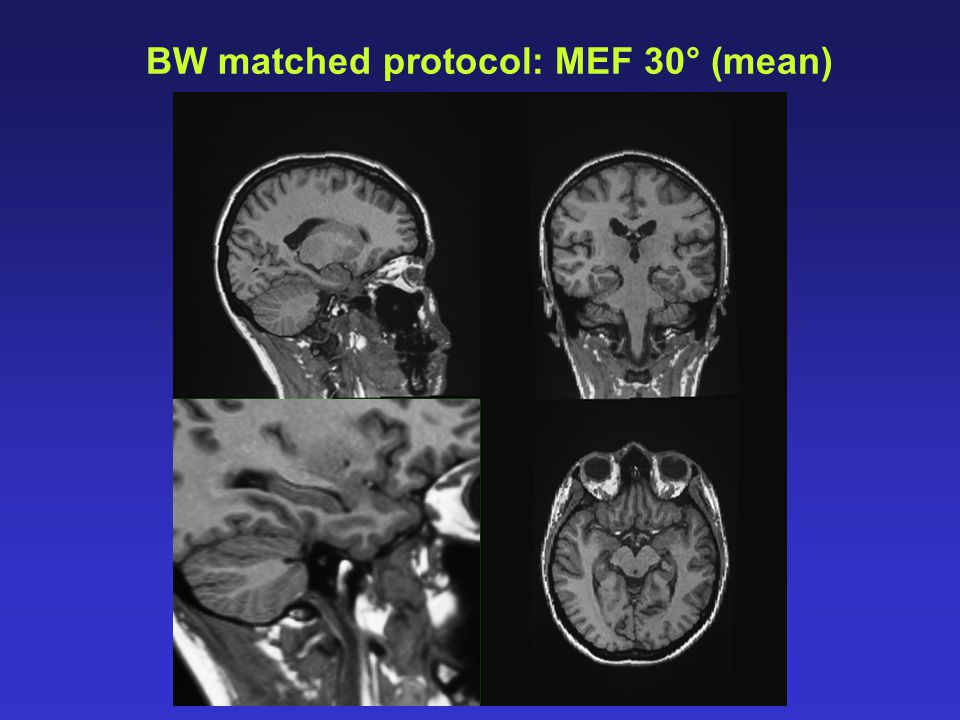 BW matched protocol: MEF 30° (mean)