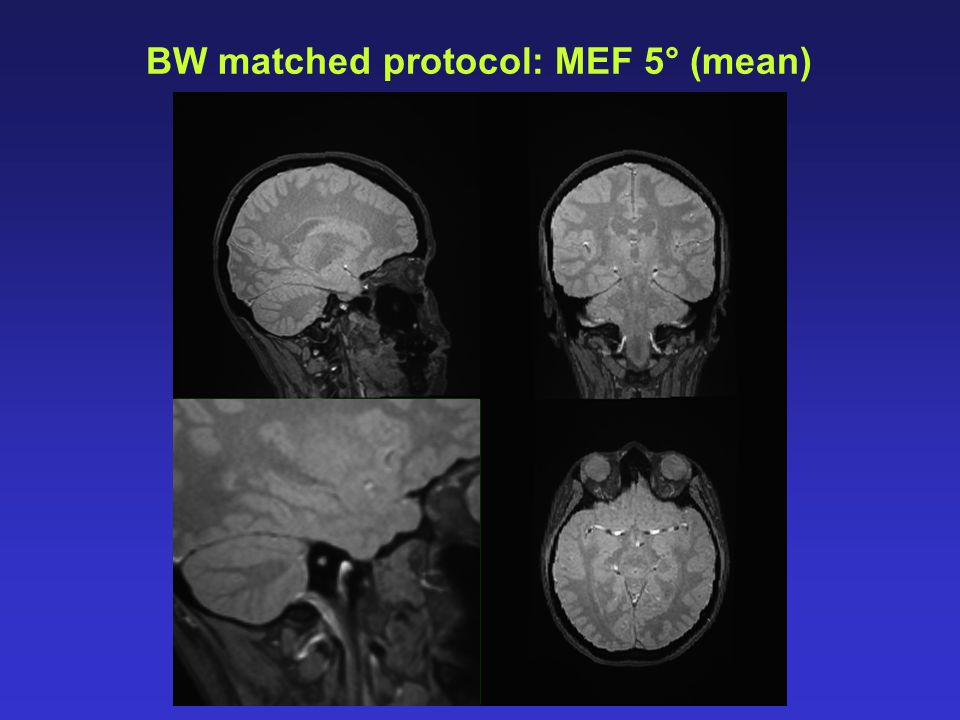 BW matched protocol: MEF 5° (mean)