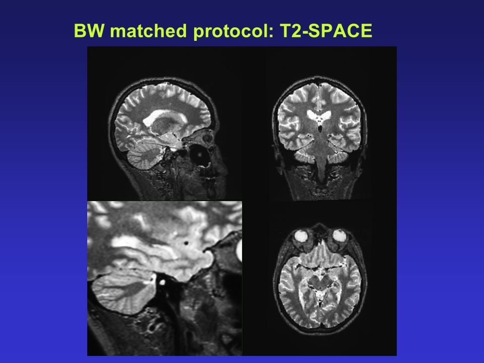 BW matched protocol: T2-SPACE