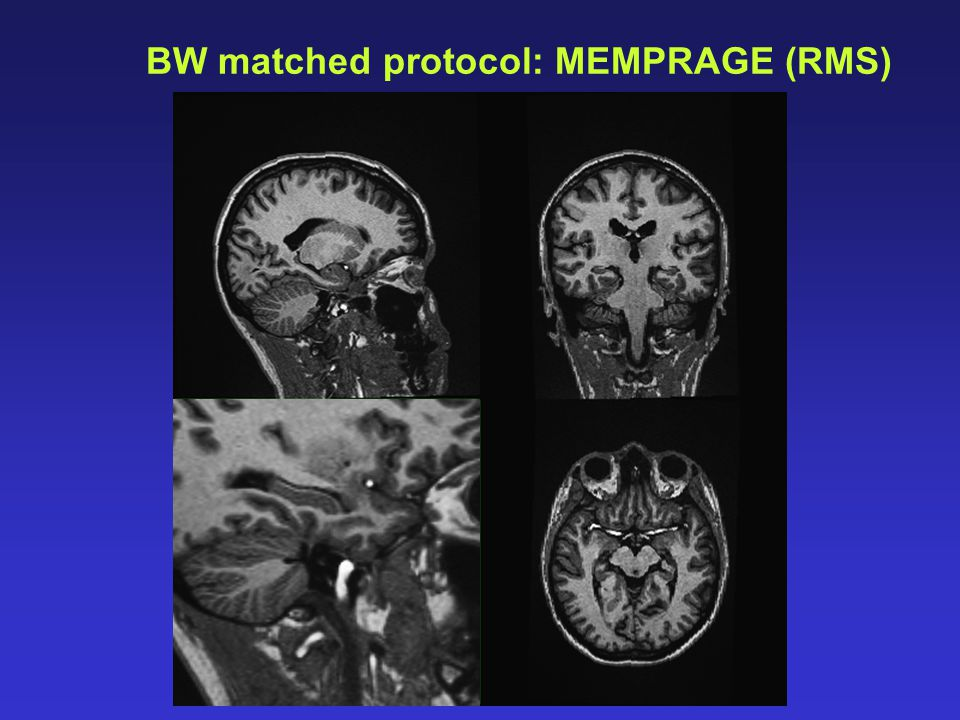 BW matched protocol: MEMPRAGE (RMS)