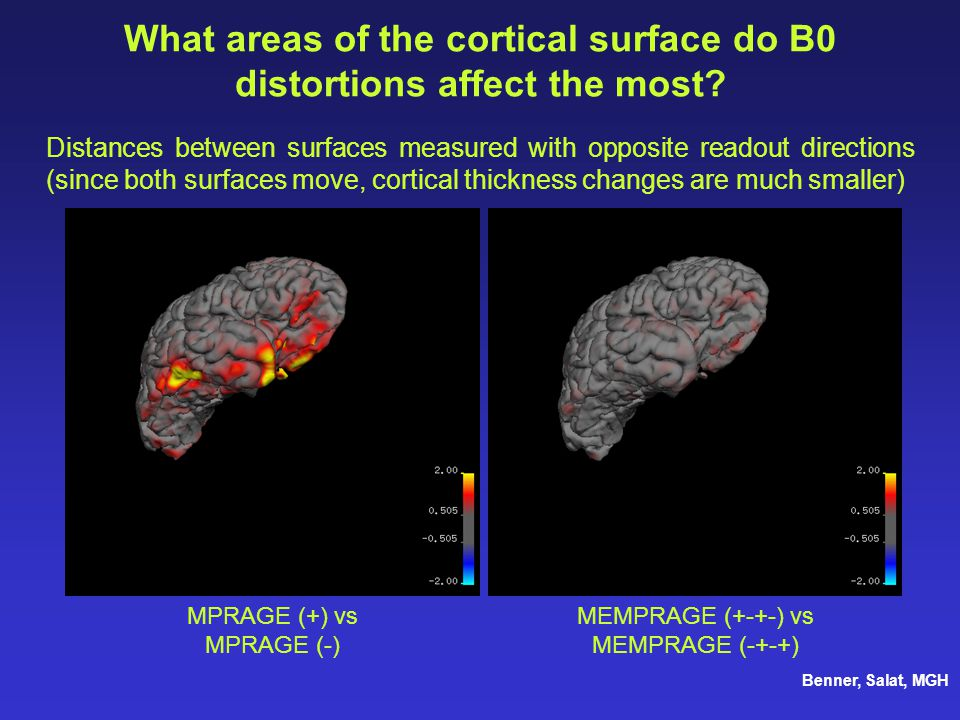What areas of the cortical surface do B0 distortions affect the most