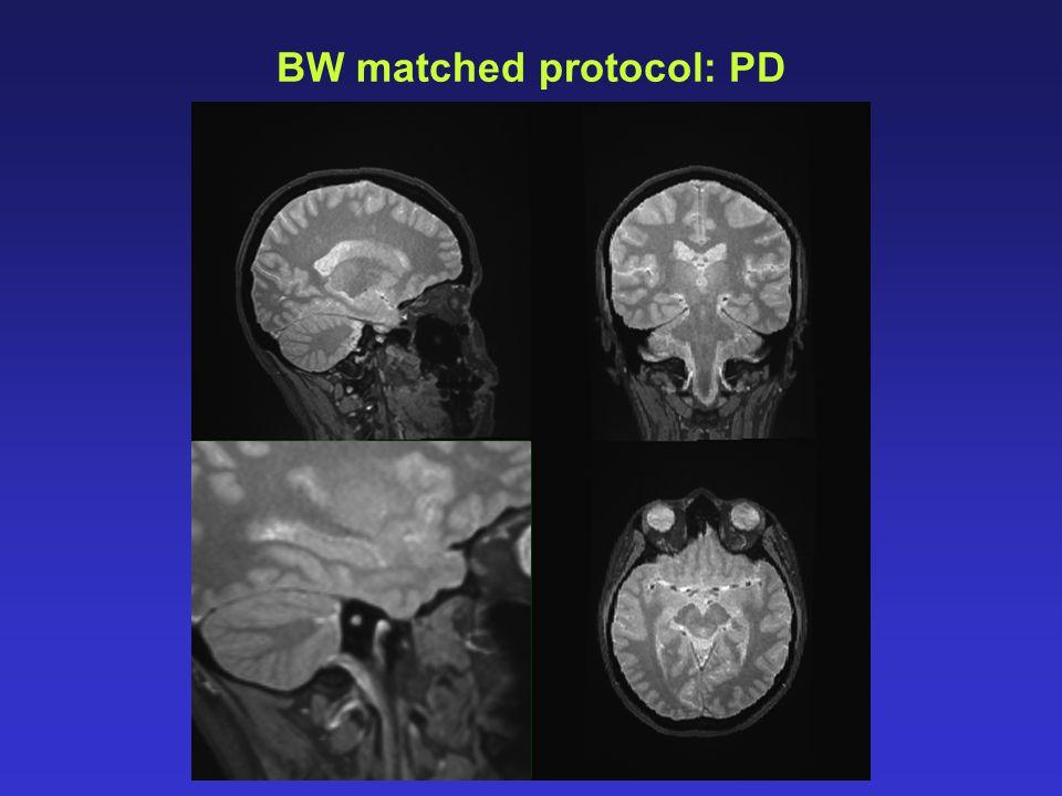 BW matched protocol: PD