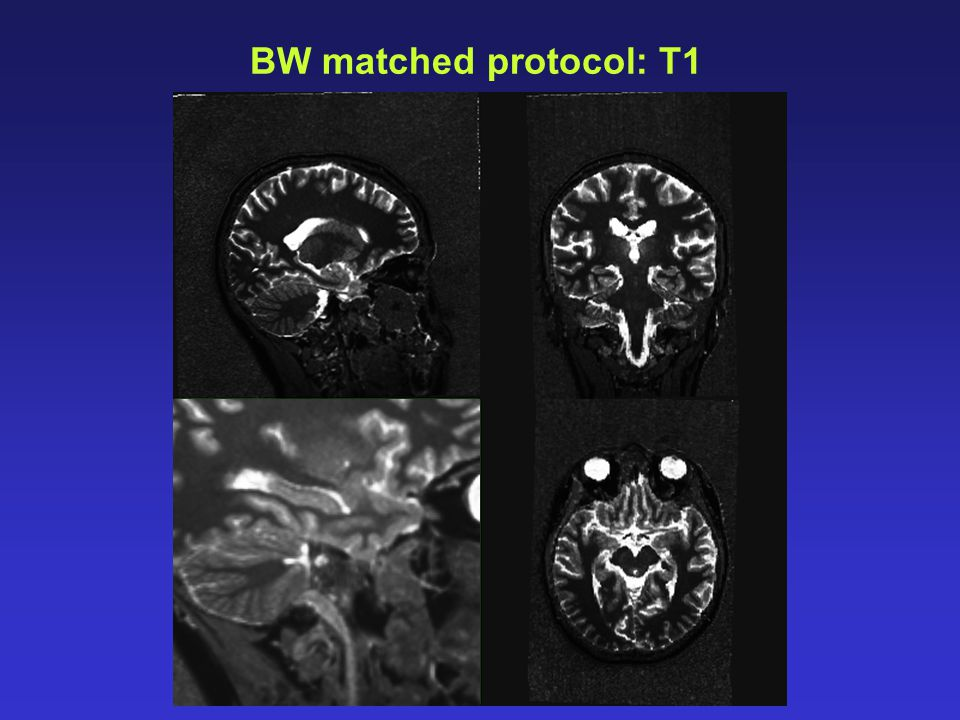 BW matched protocol: T1