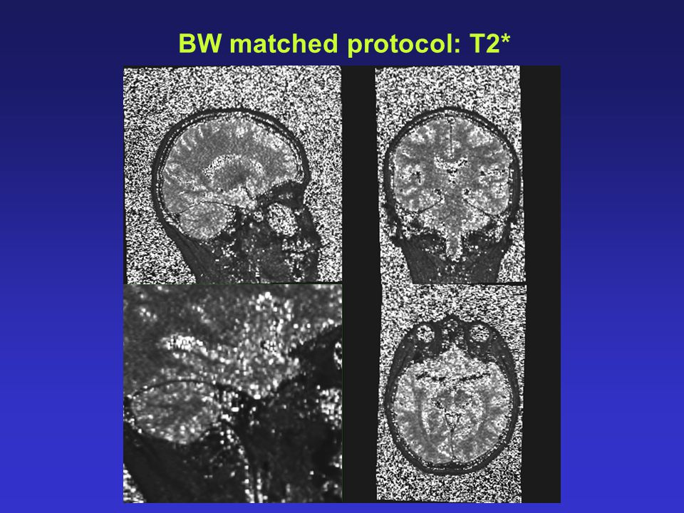 BW matched protocol: T2*
