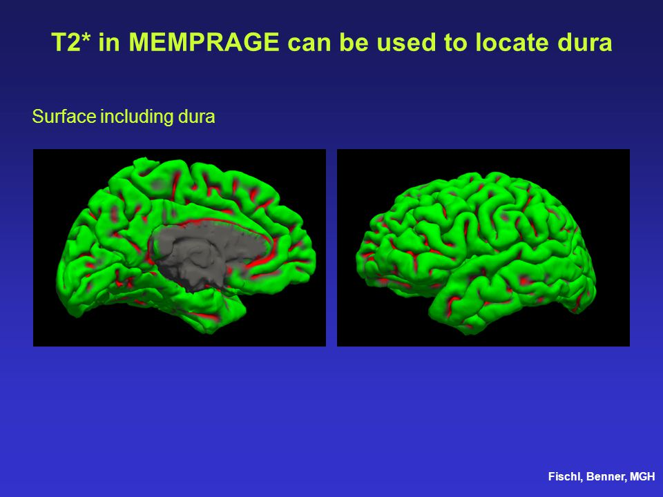 T2* in MEMPRAGE can be used to locate dura