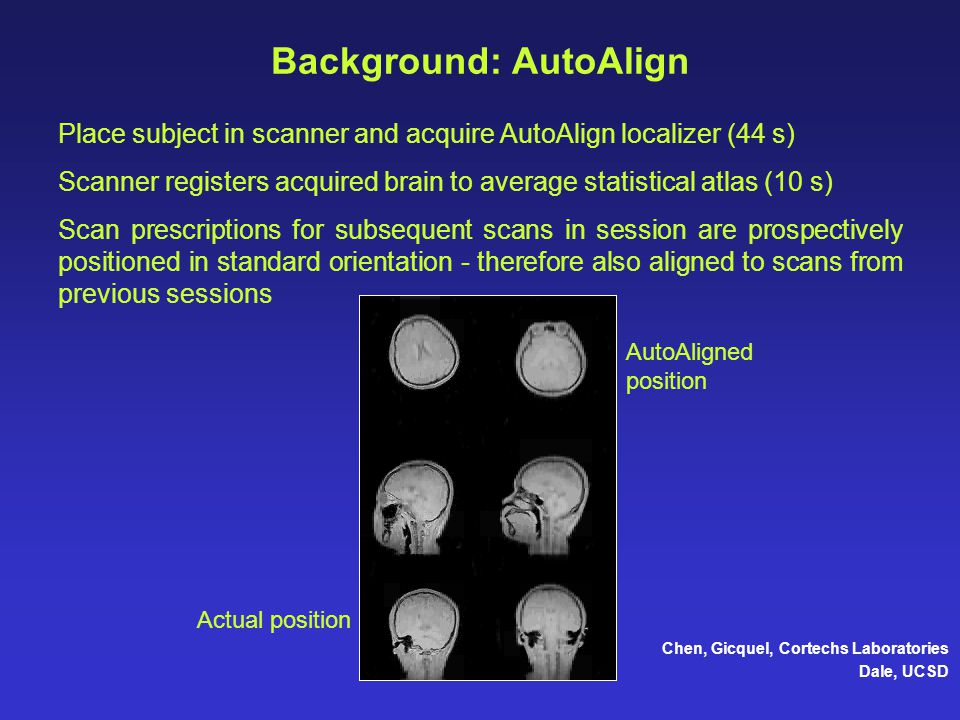 Background: AutoAlign