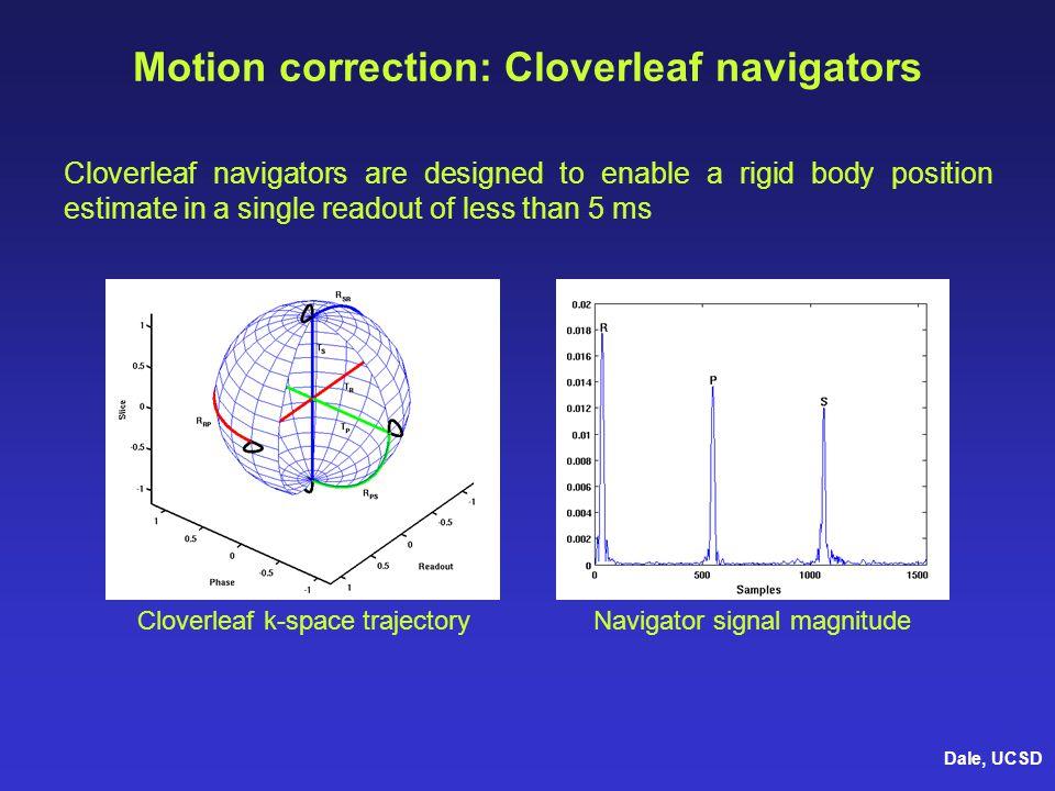 Motion correction: Cloverleaf navigators