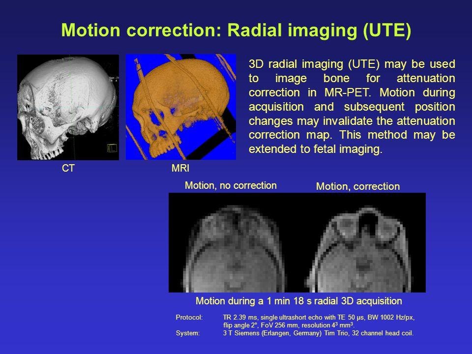 Motion correction: Radial imaging (UTE)