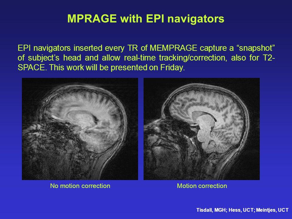 MPRAGE with EPI navigators
