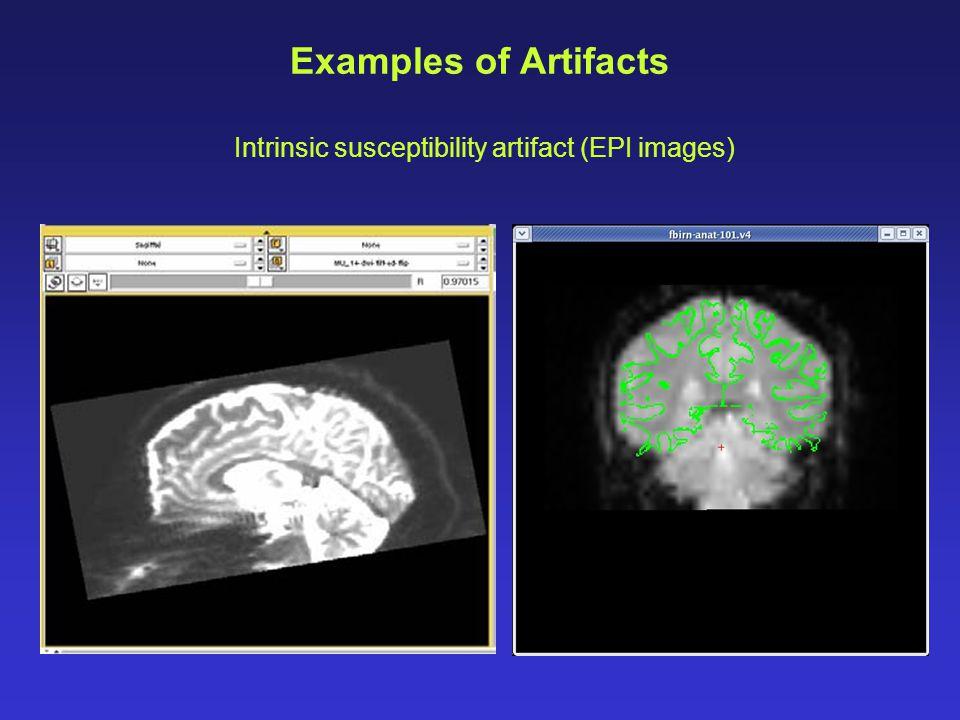 Intrinsic susceptibility artifact (EPI images)