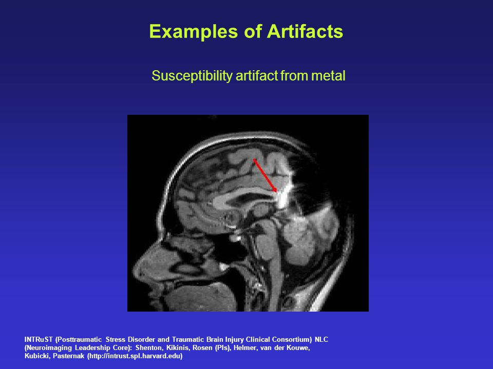 Susceptibility artifact from metal