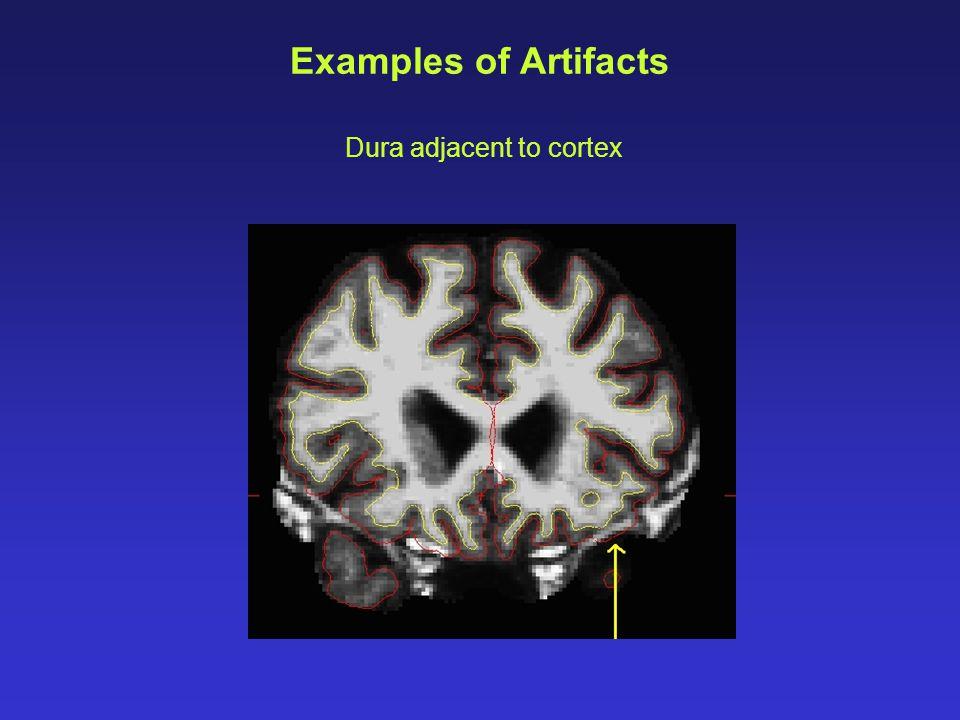 Dura adjacent to cortex