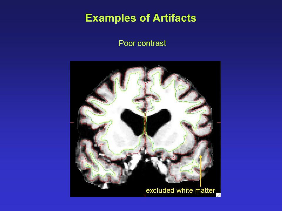 Examples of Artifacts Poor contrast