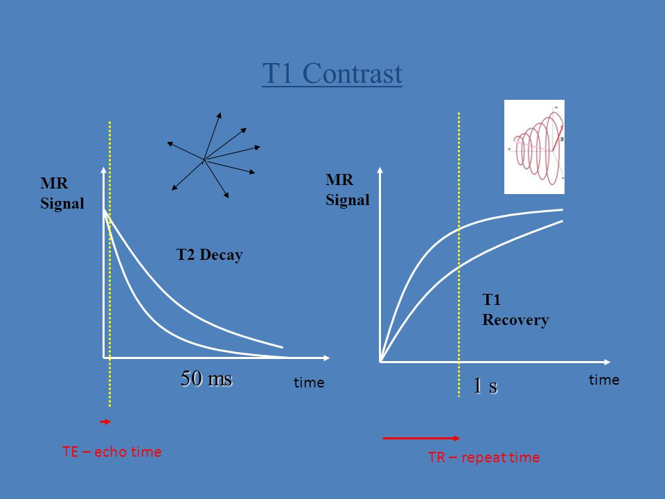 T1 Contrast 50 ms 1 s MR MR Signal Signal T2 Decay T1 Recovery time