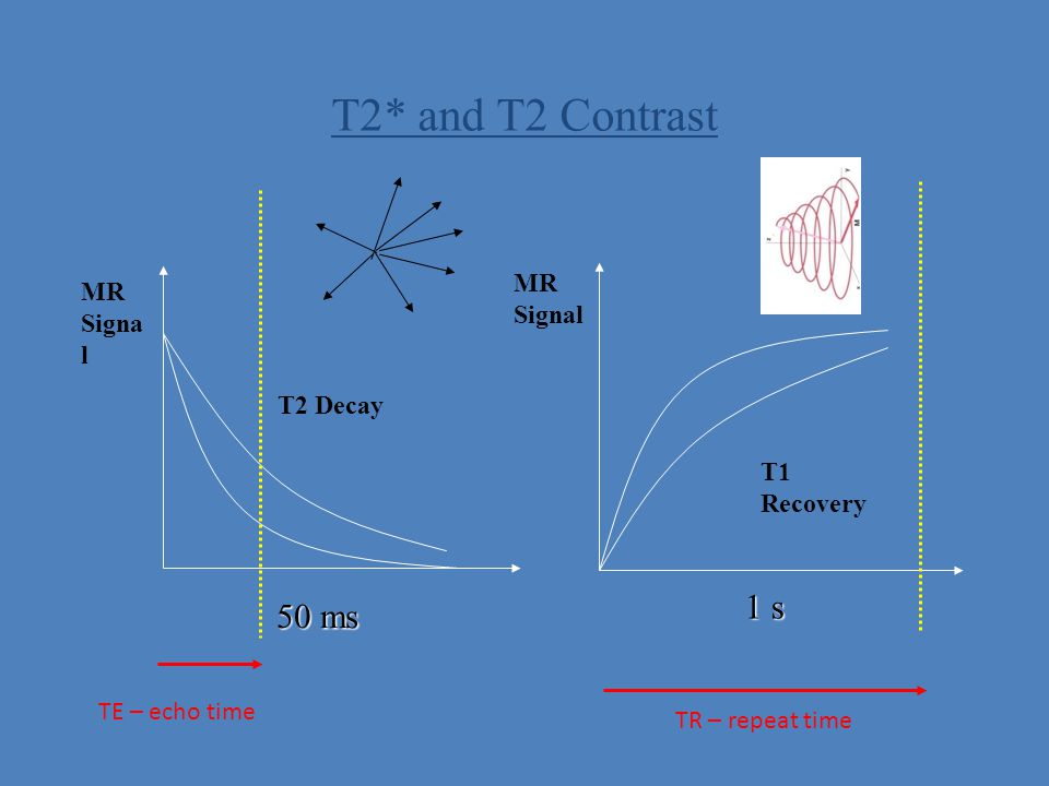 T2* and T2 Contrast 1 s 50 ms MR MR Signal Signal T2 Decay T1 Recovery