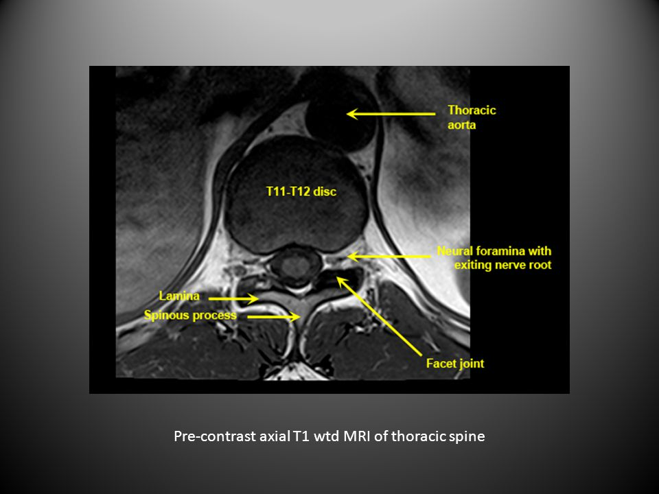 Pre-contrast axial T1 wtd MRI of thoracic spine
