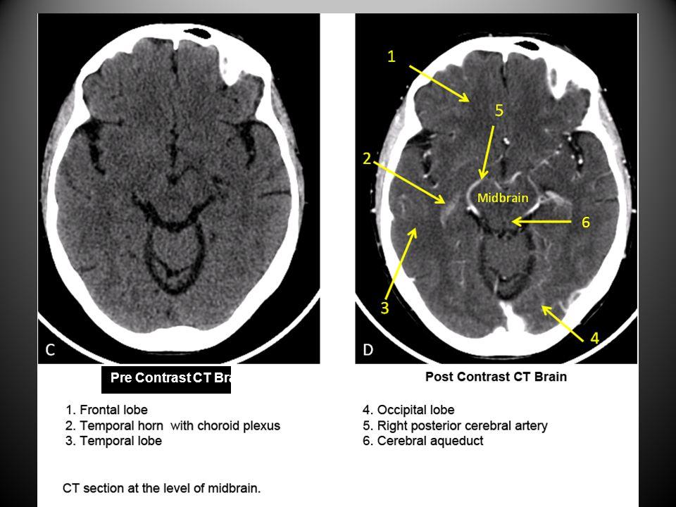 6 Pre Contrast CT Brain