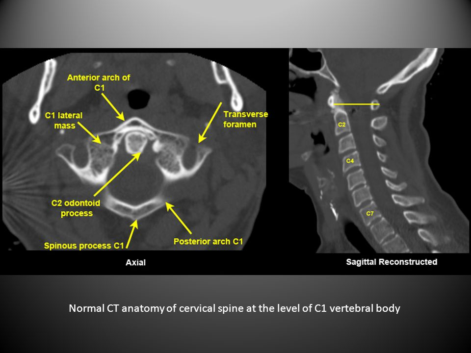Normal CT anatomy of cervical spine at the level of C1 vertebral body