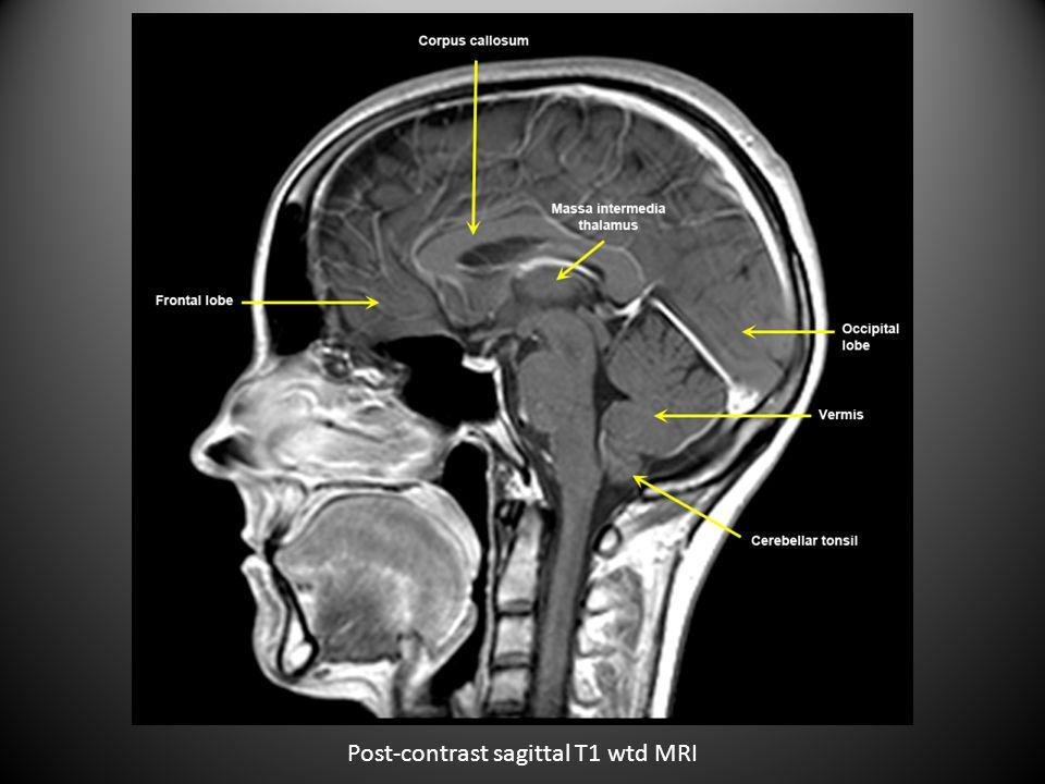 Post-contrast sagittal T1 wtd MRI